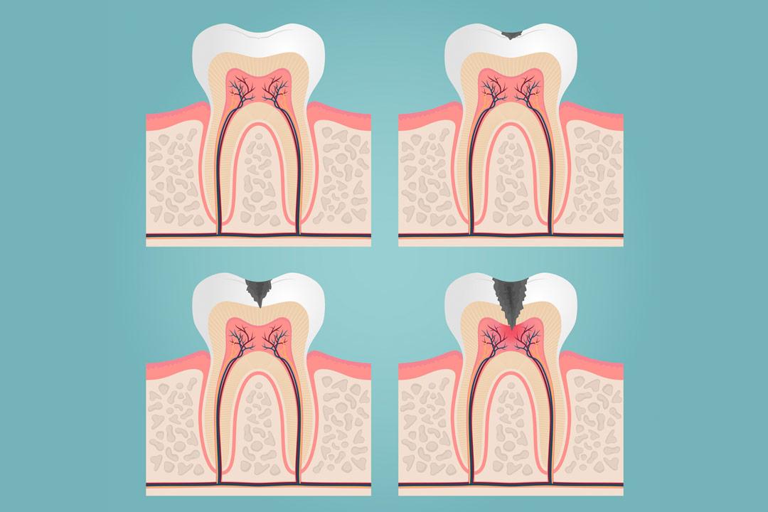 carie denti | Studio dentistico a Brescia | Studio dentistico Soardi