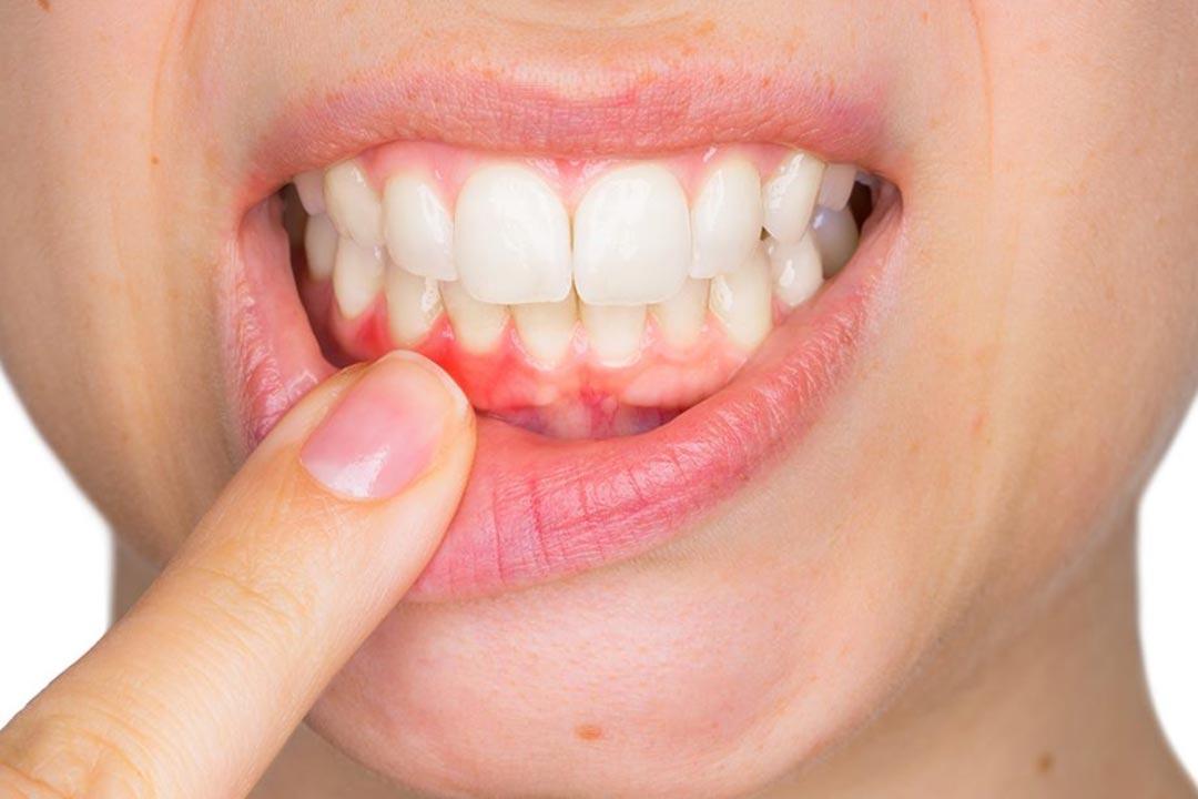 Parodontologia a Brescia | Studio dentistico a Brescia | Studio dentistico Soardi