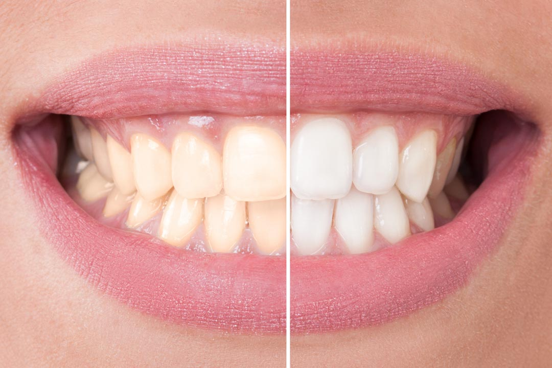 Sbiancamento dentale a Brescia | Studio Odontoiatrico Soardi