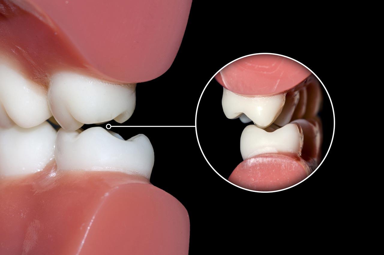 Gnatologia a Brescia | Studio dentistico a Brescia | Studio dentistico Soardi