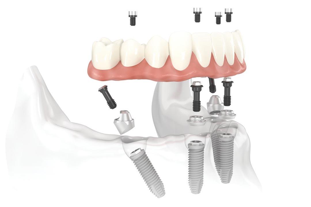 Implantologia dentale a Brescia | Studio Odontoiatrico Soardi