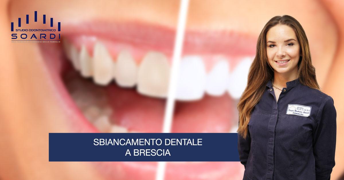 Sbiancamento dentale a Brescia   News   Studio Soardi