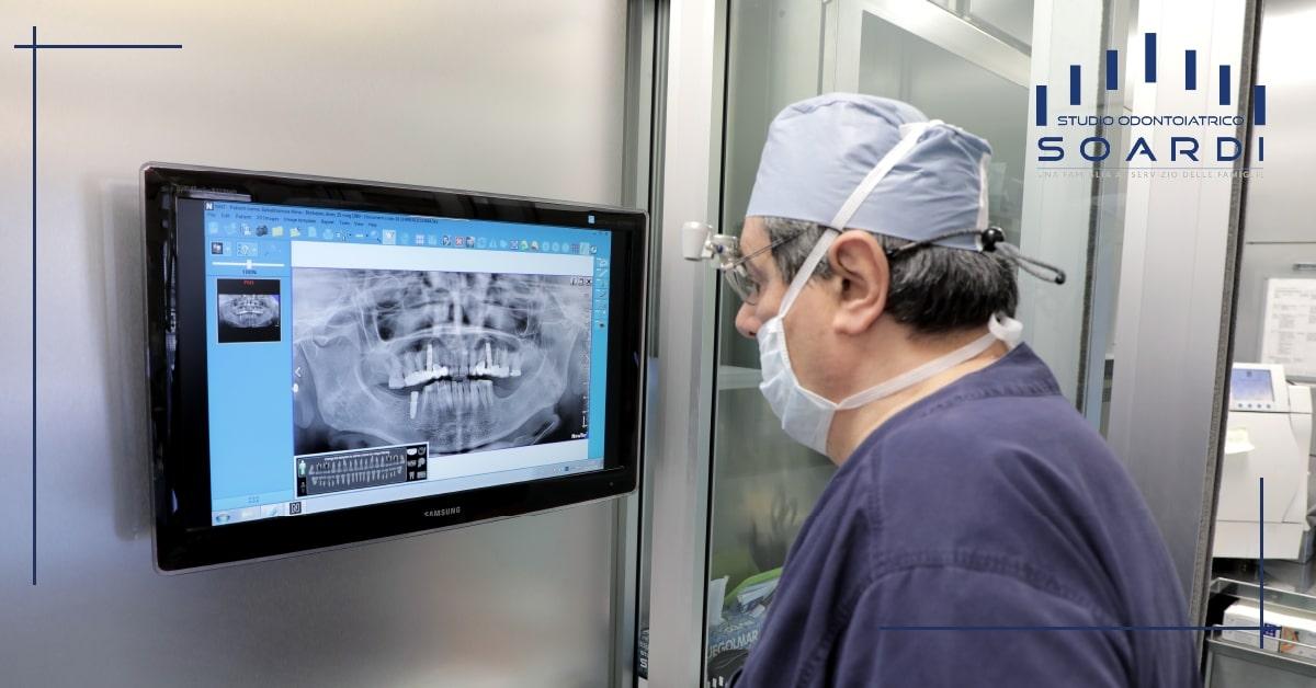 Implantologia mini invasiva | Studio Dentistico Soardi | Dentista a Brescia
